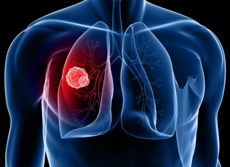 Lung Cancer Screening Claremore